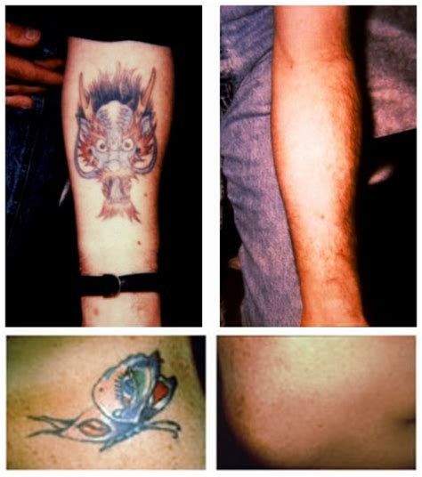 tattoo balm removal removal before and after gallery best