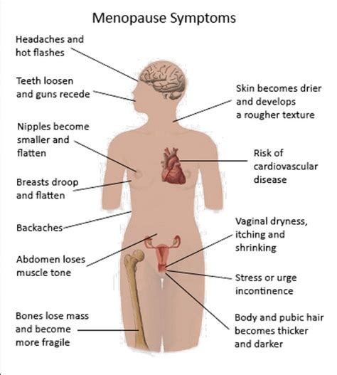 Menopause The Basics Always New   image gallery menopausal symptoms