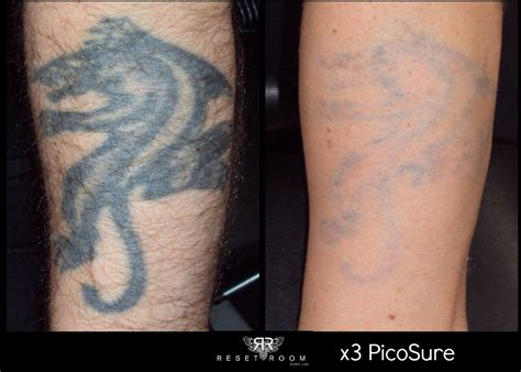 large tattoo removal before and after before after photos of picosure laser removal