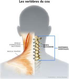 cervicalgie mal de cou