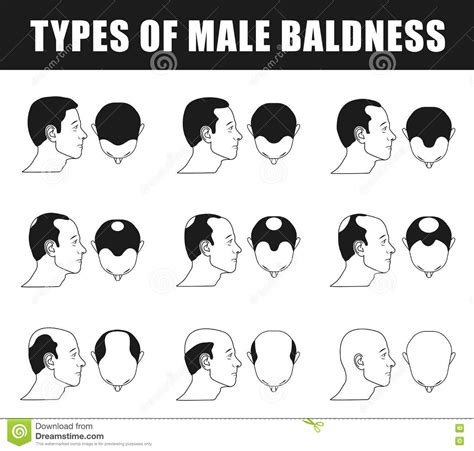 male pattern baldness types types of male baldness stock vector image of hairstyle
