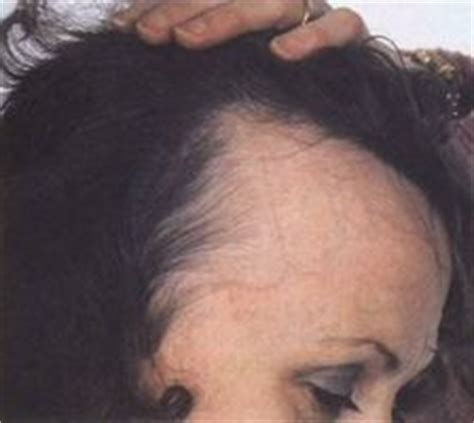 women with receding hairlines about receding hairlines in women ehow