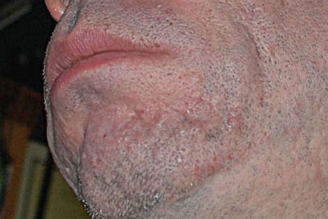 best scar types of acne scars and treatments