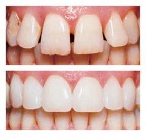 zähne bleichen vorher nachher veneers