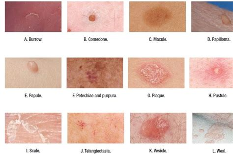 pustules pestilence and tudor treatments and ailments of henry viii books rashes in the form of pustules on the skin treatment