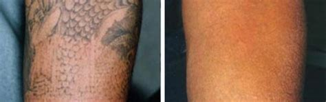 adelaide tattoo removal laser removal adelaide