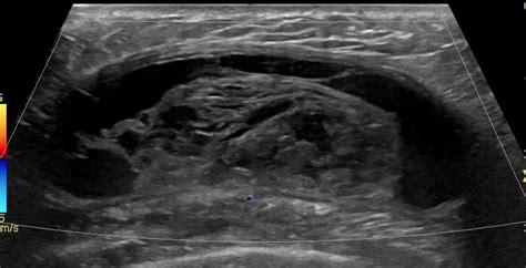 seroma post mastectomy right breast image radiopaedia org