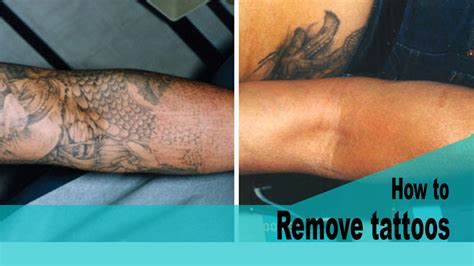 tattoo removal home how to remove tattoos at home fast chads tactic