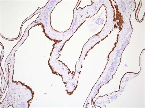 Cystic Lymphangioma Pathology Outlines by Pathology Outlines Benign Cystic Mesothelioma