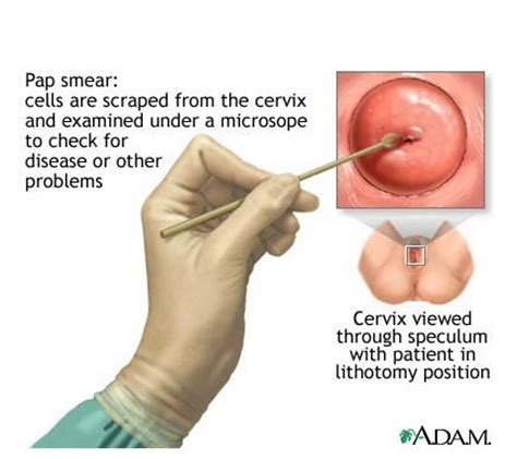 pap test vergine what is a pap smear it s a screening test for cervical