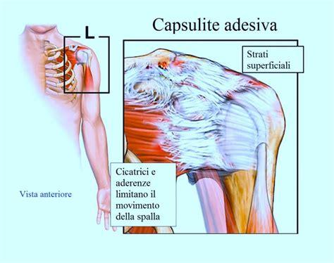 dolore interno braccio sinistro dolore alla spalla e al braccio
