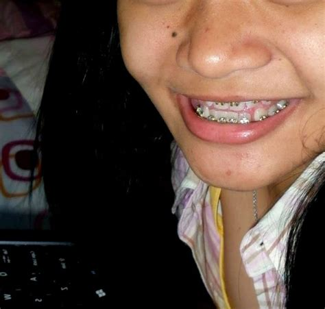 Biaya Pemutihan Gigi Di Jogja pasang kawat gigi jogja