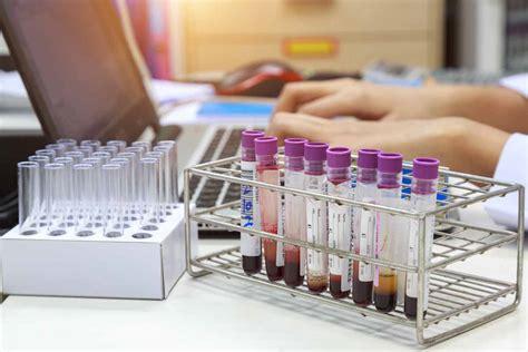 acido urico alimentazione corretta acido urico basso caratteristiche e cause dei valori