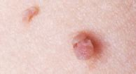 skin tag or ingrown hair on underwear line skin lesions 45 causes with pictures types treatments