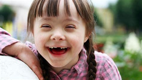 imagenes discapacidad mental da mundial de sndrome de down caractersticas y causas