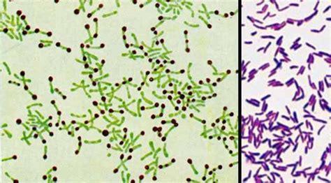 jenis bakteria merbahaya    telefon kita