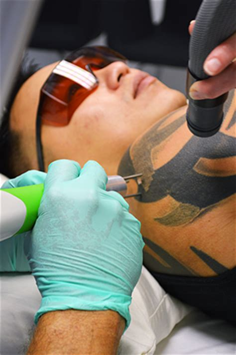 is tattoo removal painful home new look laser college