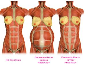 your postnatal bodylove pilates