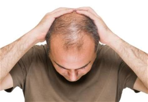dht dihydrotestosterone what is dht s role in baldness dht dihydrotestosterone what is dht s role in male