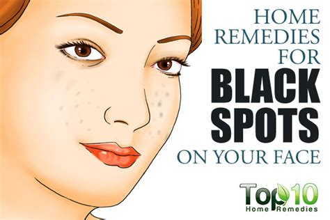 home remedies for black spots on your top 10 home