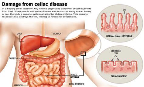 Celiac Stool Pictures by Celiac Disease Kullabs