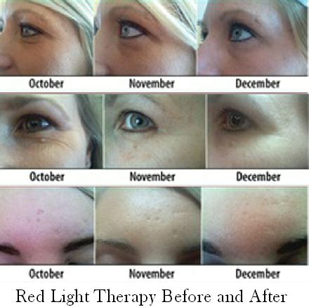 led light therapy before and after yellow light therapy seriously fights aging