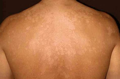 tattoo fungal infection tinea versicolor pictures contagious symptoms