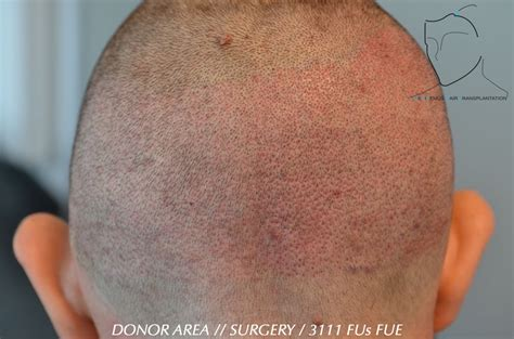 neograft recovery timeline hair transplant recovery hair transplant recovery