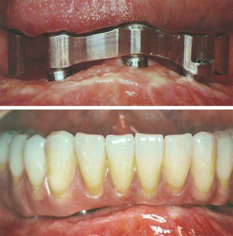 protesi fissa e mobile protesi fissa e mobile centro dentale specialistico