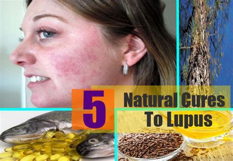 5 cure to lupus how to cure lupus naturally