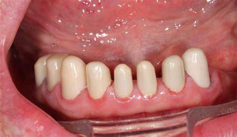 comfortable dentures comfortable functional dentures