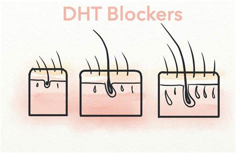 dht and hair loss 5ar inhibitor seehow the 12 best natural dht blockers regrow your hair in 16