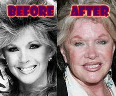 Ill Plastic Surgery Hollyscoop by Liza S Shocking Plastic Surgery Disasters