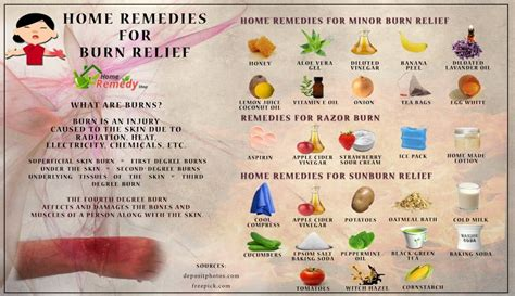 home remedies for burn relief home remedies
