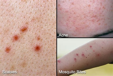 difference between bed bug bite and mosquito difference between scabies acne and mosquito bites