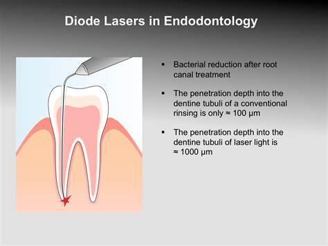 diode laser endodontics laser dentistry clinical application 171 prestige dental care