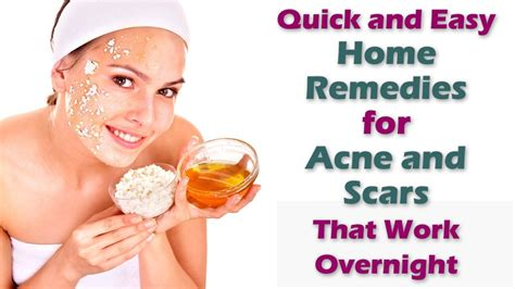 easy home remedies for acne and scars that work