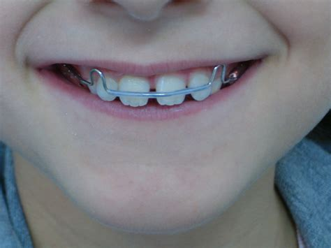 apparecchi dentali interni ortodonzia studioodontoiatricoparenti