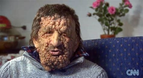 12 year old italian boys disfigured man speaks about hugging pope francis ny