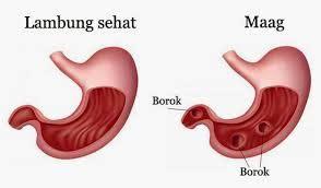 Obat Tradisional Maag Gastritis obat tradisional maag alami mengobati penyakit maag