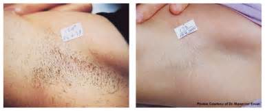 wax photos before and after hair removal laser hair removal new york