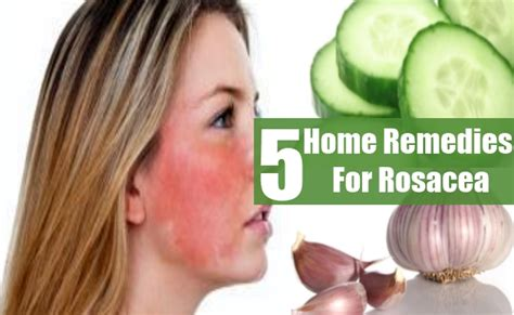 top 5 best treatment rosacea related keywords top 5 best
