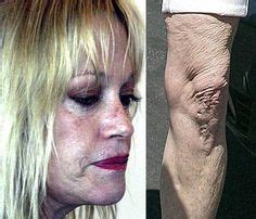 Melanie Griffith Looks Like Hell by Why I Don T Smoke On Melanie Griffith