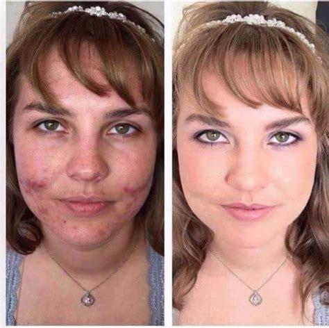 best makeup for rosacea sufferers makeup for rosacea sufferers mugeek vidalondon
