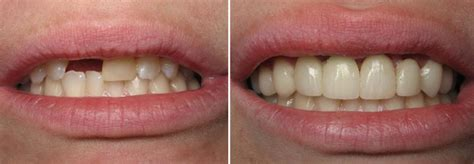 complete comfort dental dentists in channahon il
