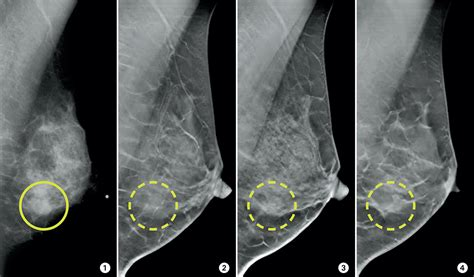 mammogram images 3 d mammograms may improve accuracy of breast cancer screening
