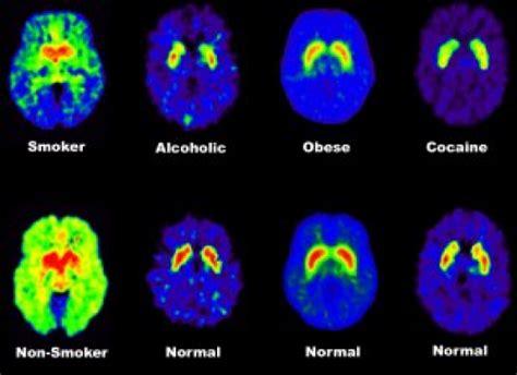 brain  sugar explained  science