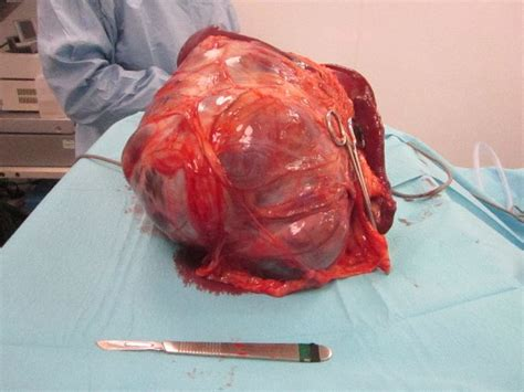 enlarged spleen in dogs splenectomy in the