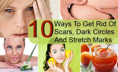 Ways To Banish Circles by 10 Ways To Get Rid Of Scars Circles And