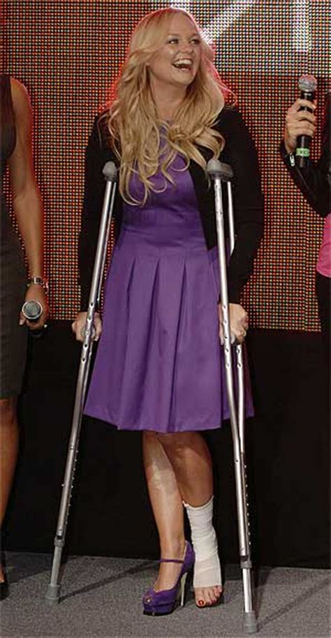 Joss On Crutches by The Bandage Board Definetly Bunton